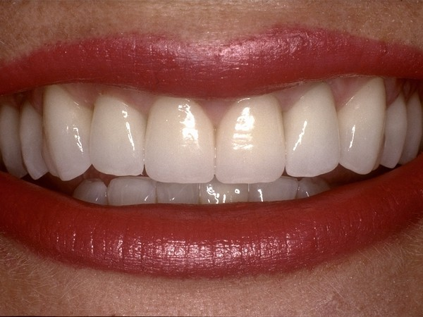 Smile Makeovers at Bijan Family Dental Practice, in Fountain Valley, CA